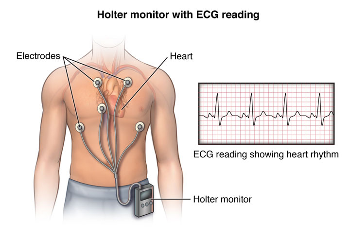 Holter Monitoring